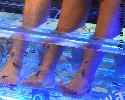 Attention au «fish pedicure » !